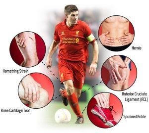 Fotbollskador Knäskador & andra skador hos fotbollsspelare